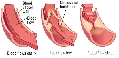 A detailed guide about Cholesterol
