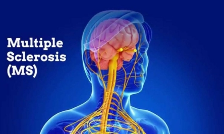 A comprehensive guide on Multiple sclerosis