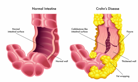 Everything to know about Crohn's disease