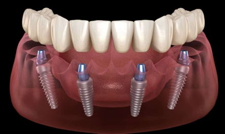 What are dental implants and how they work?